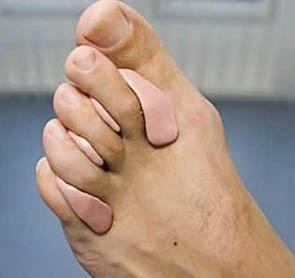 Afbeeldingsresultaat voor orthese pedicure